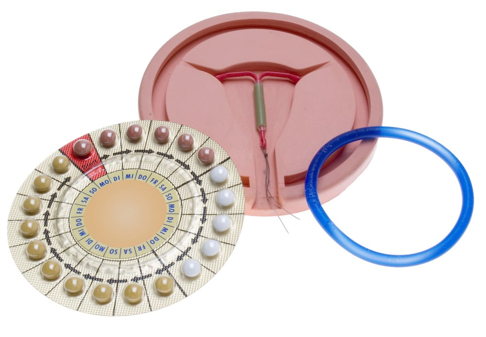 birth control options